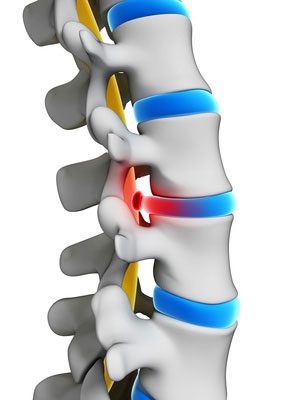 כאבים בחוליות הצוואר | התמודדות וטיפול