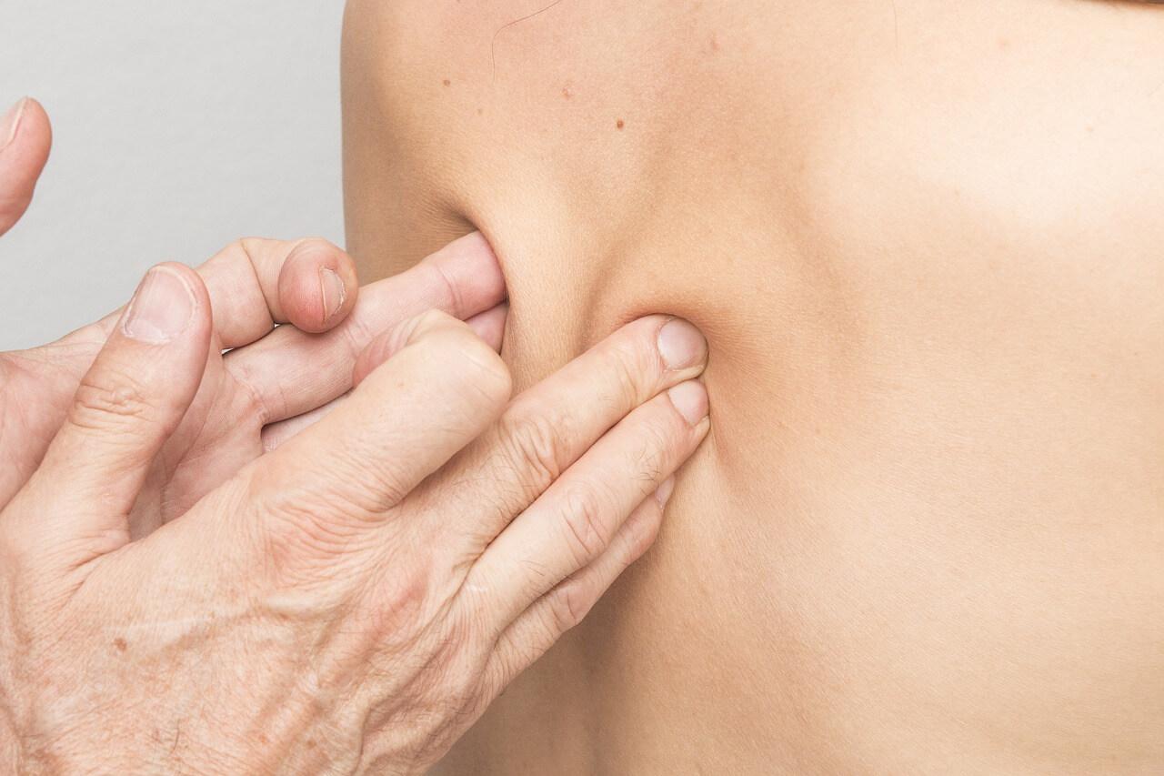 טיפול בכאבי שכמות כרוניים