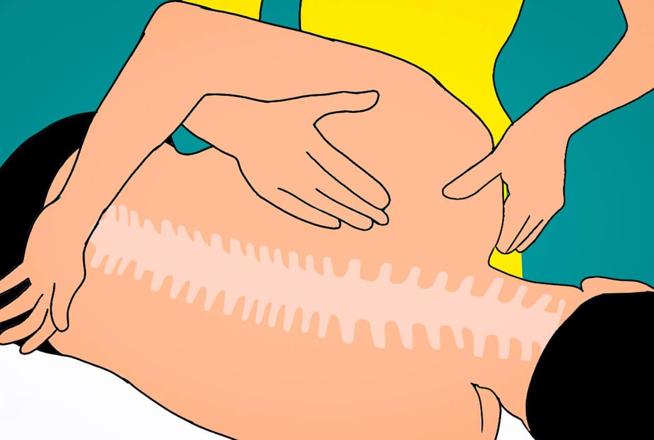 טיפול טבעי בגב תפוס